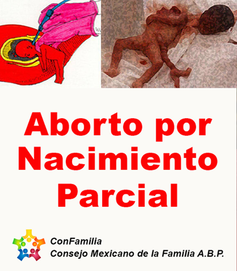 Aborto por Nacimiento Parcial
