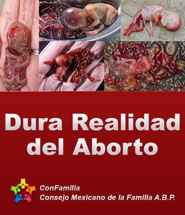 Dura Realidad del Aborto